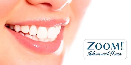 Отбеливание зубов ZOOM по акции