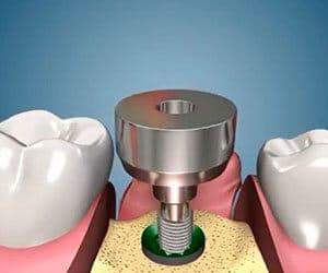 Классическая двухэтапная имплантация зубов