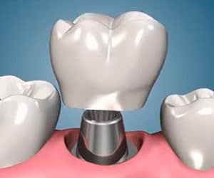 коронка зубная