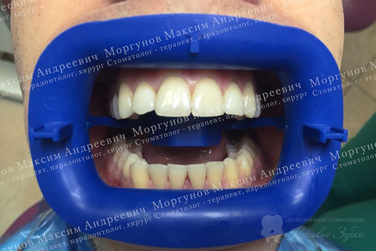 фото работ стоматологов