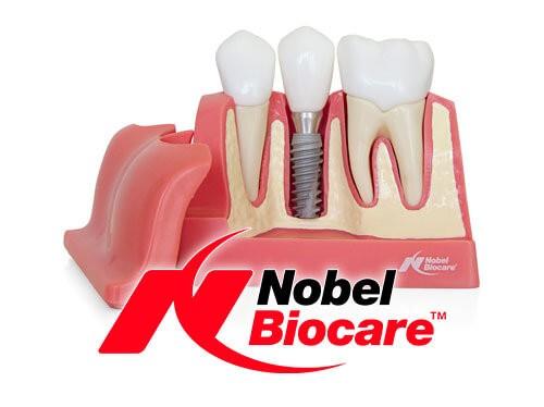 Имплантация зубов Nobel по акции