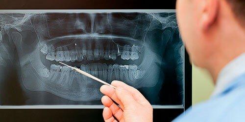 Акции и скидки на КТ и рентген зубов