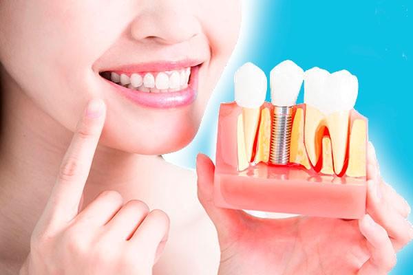Имплантация зубов в Петербурге
