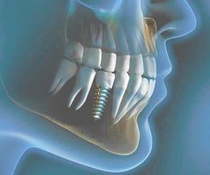 как выглядит имплант зуба
