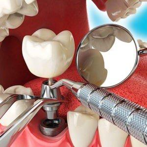 """имплантация в стоматологии """"Красивые зубки"""""""