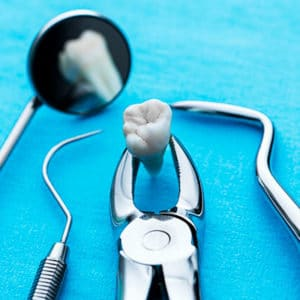 Хирургическая стоматология в Санкт-Петербурге