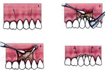 Кюретаж зубов в Спб