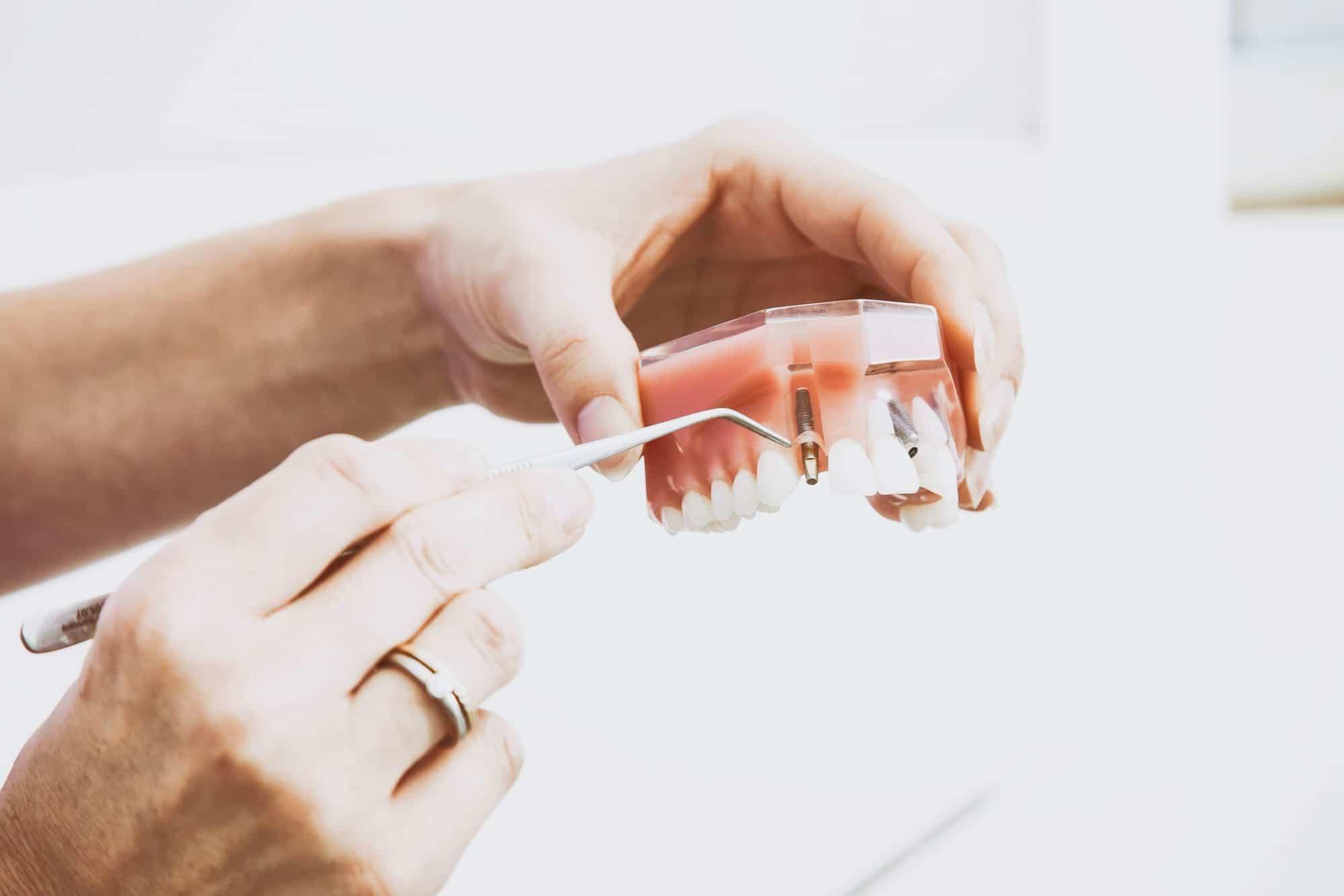 что такое зубной имплант