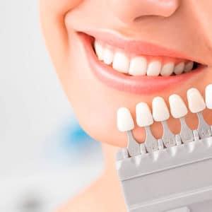 Эстетическая стоматология в СПб