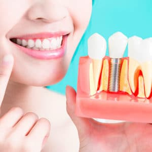 Имплантация зубов в СПб
