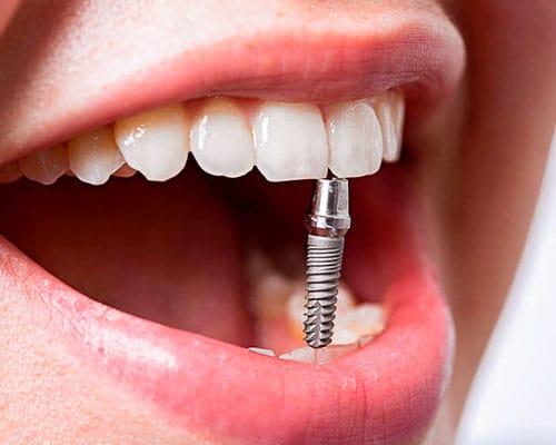 Имплант зубной под ключ