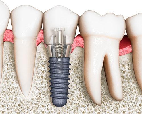 Имплантация зубов недорого в СПб