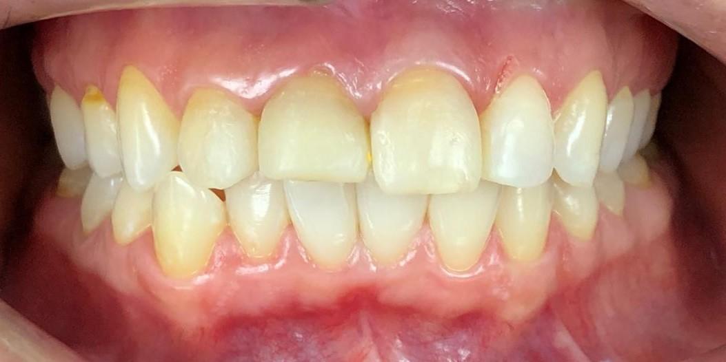 Реставрация зубов емакс до