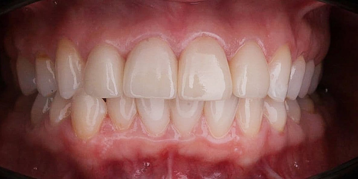 Реставрация зубов emax фото после