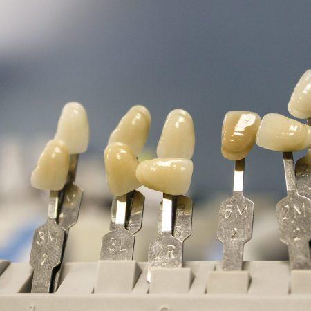 Определение естественного цвета зубов по шкале Вита