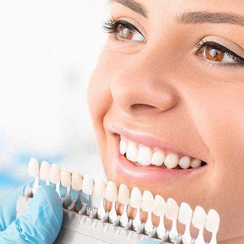 подбор оттенка зубов